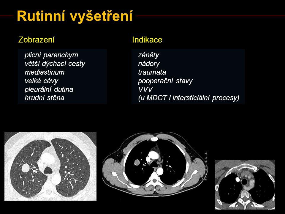 Rutinní vyšetření Zobrazení Indikace plicní parenchym