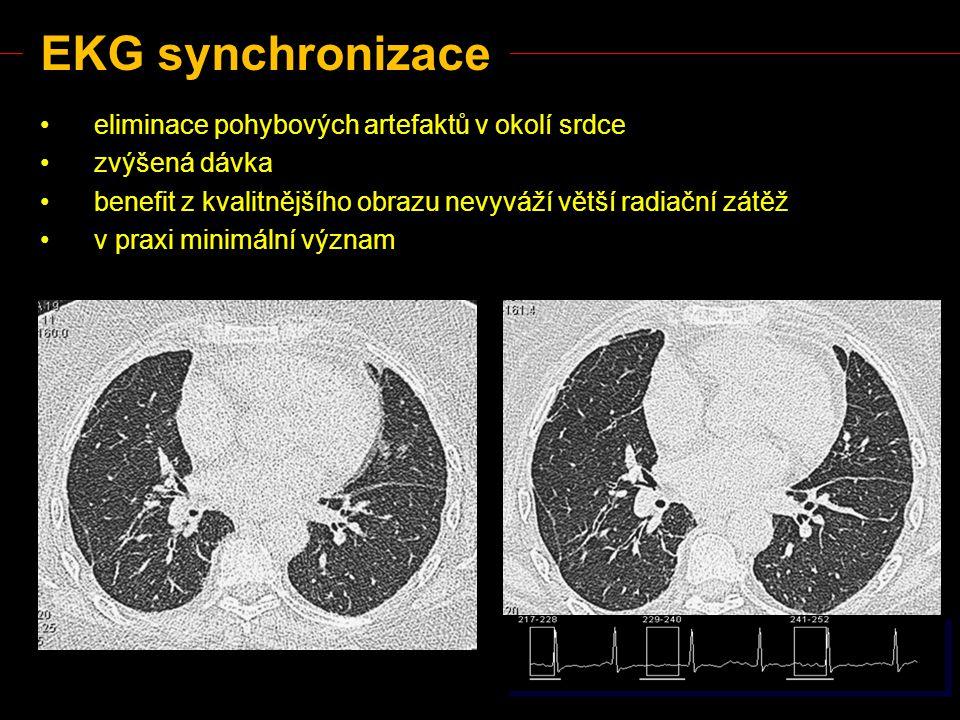 EKG synchronizace eliminace pohybových artefaktů v okolí srdce
