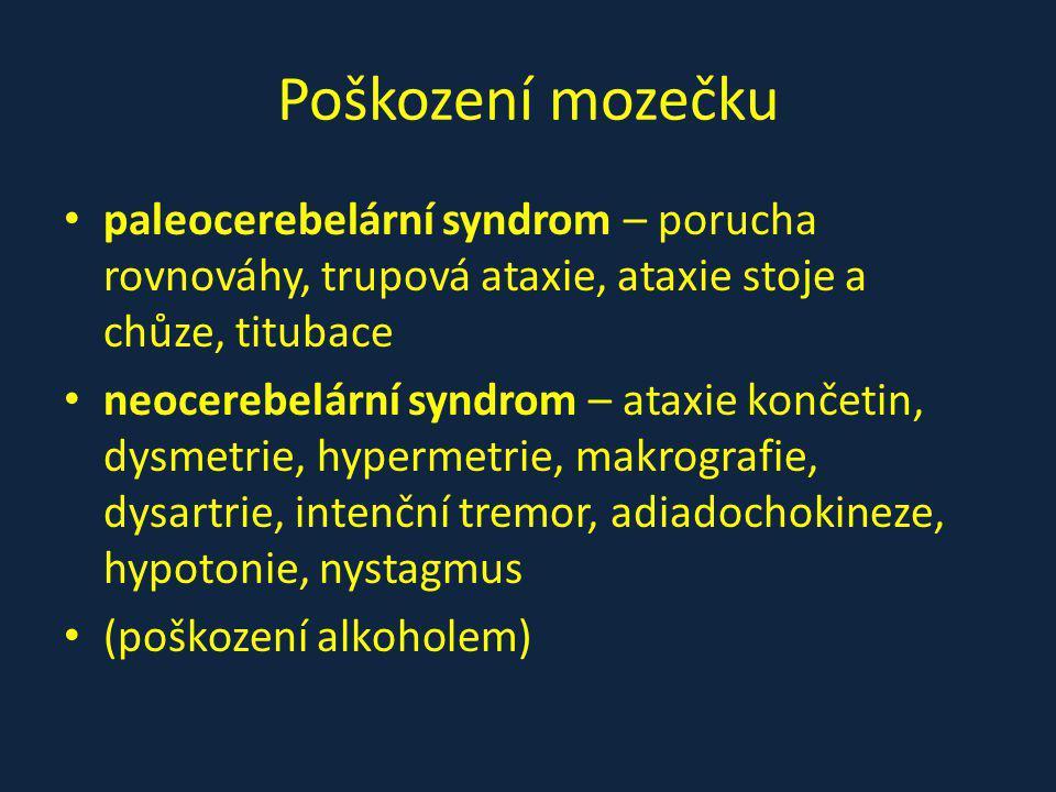 Poškození mozečku paleocerebelární syndrom – porucha rovnováhy, trupová ataxie, ataxie stoje a chůze, titubace.