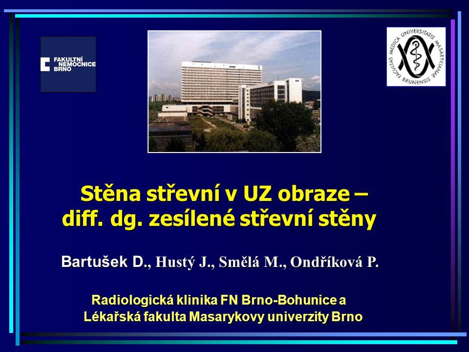 Stěna střevní v UZ obraze – diff. dg. zesílené střevní stěny