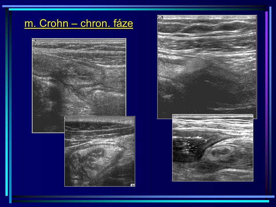 m. Crohn – chron. fáze
