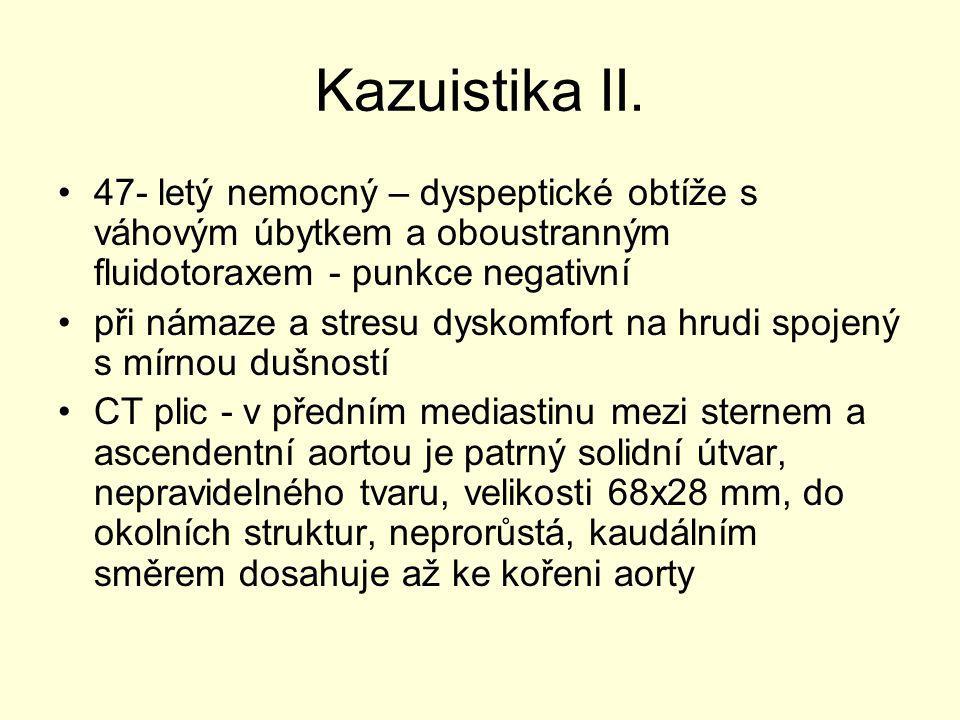 Kazuistika II. 47- letý nemocný – dyspeptické obtíže s váhovým úbytkem a oboustranným fluidotoraxem - punkce negativní.