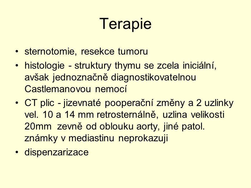 Terapie sternotomie, resekce tumoru
