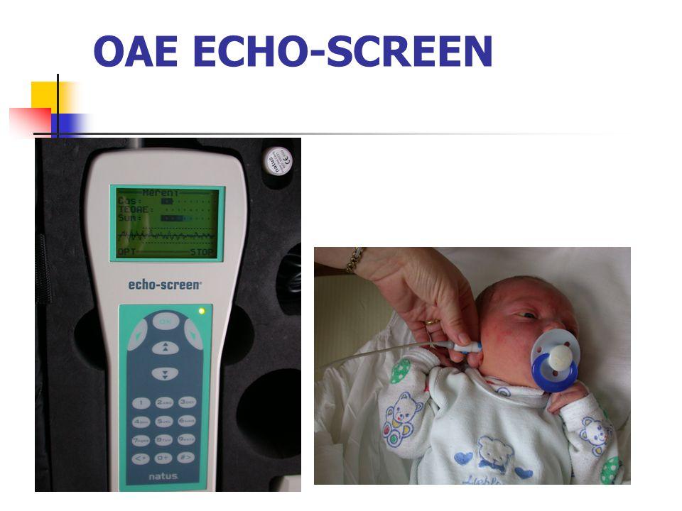 OAE ECHO-SCREEN
