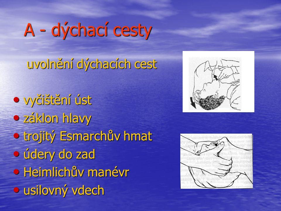A - dýchací cesty vyčištění úst záklon hlavy trojitý Esmarchův hmat