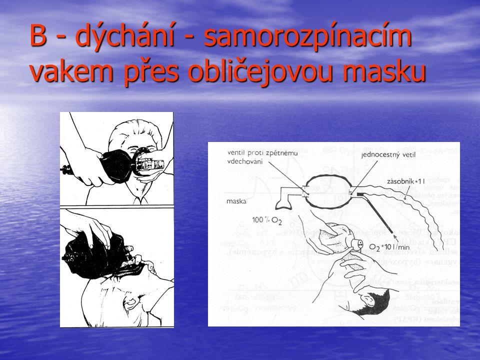 B - dýchání - samorozpínacím vakem přes obličejovou masku