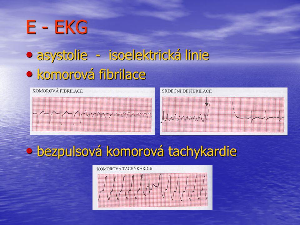 E - EKG asystolie - isoelektrická linie komorová fibrilace