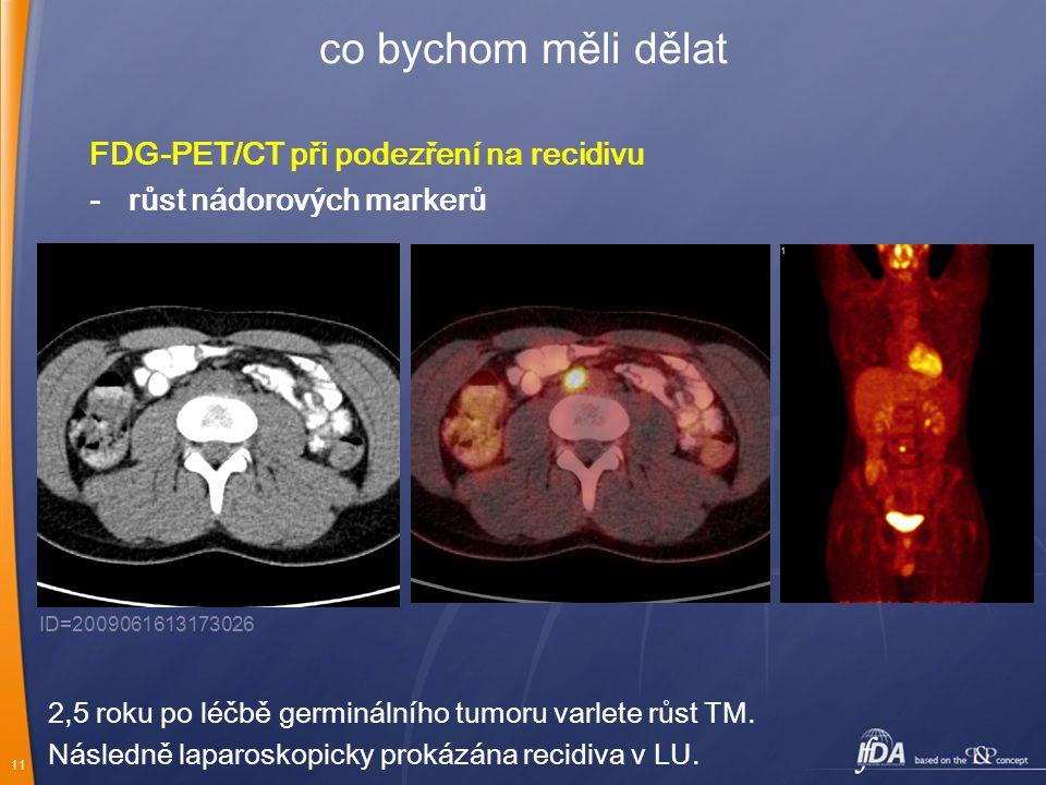 co bychom měli dělat FDG-PET/CT při podezření na recidivu - růst nádorových markerů ID=2009061613173026.