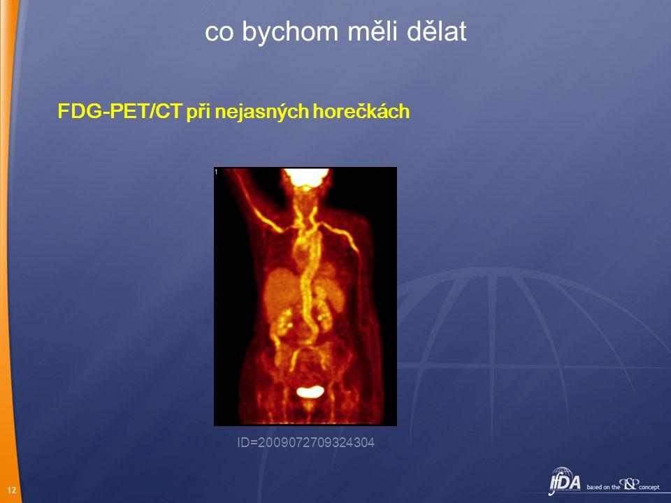 co bychom měli dělat FDG-PET/CT při nejasných horečkách