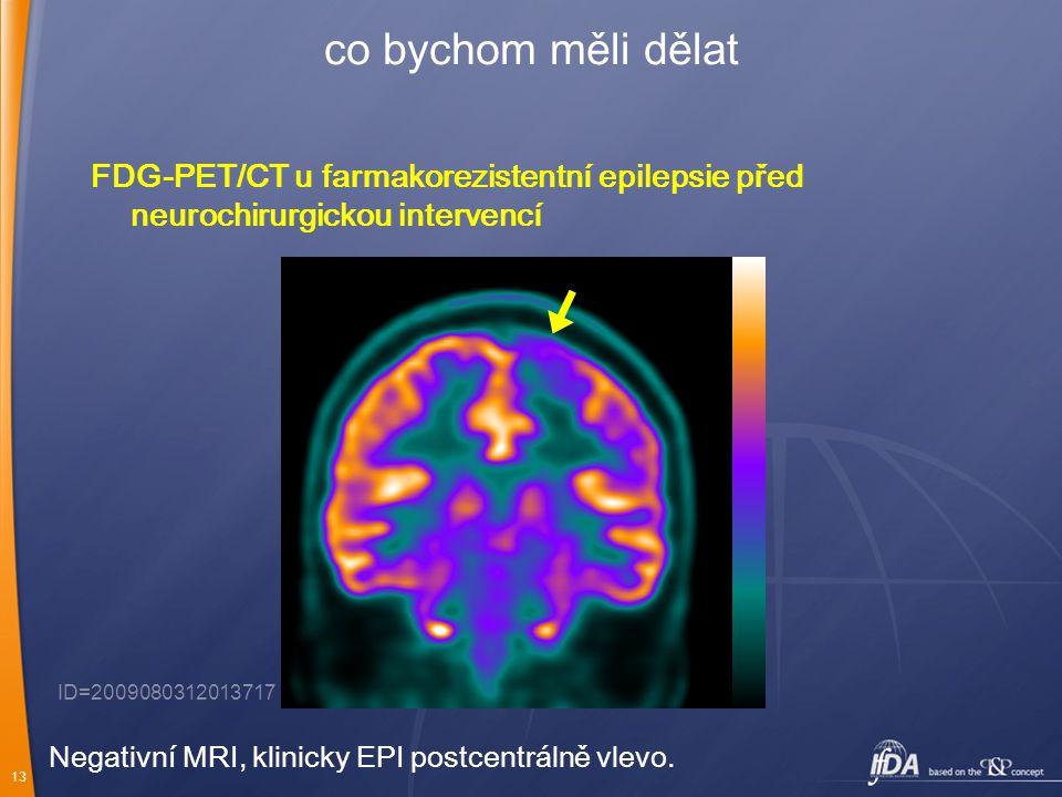 co bychom měli dělat FDG-PET/CT u farmakorezistentní epilepsie před neurochirurgickou intervencí. ID=2009080312013717.