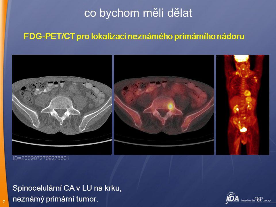 co bychom měli dělat FDG-PET/CT pro lokalizaci neznámého primárního nádoru. ID=2009072709275501. Spinocelulární CA v LU na krku,
