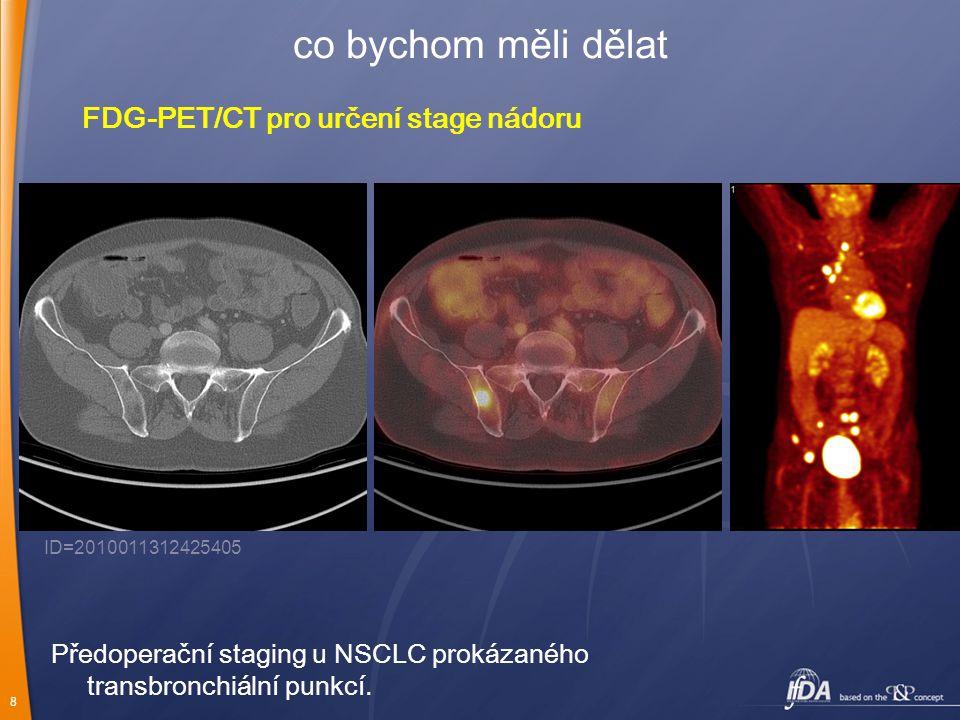 co bychom měli dělat FDG-PET/CT pro určení stage nádoru