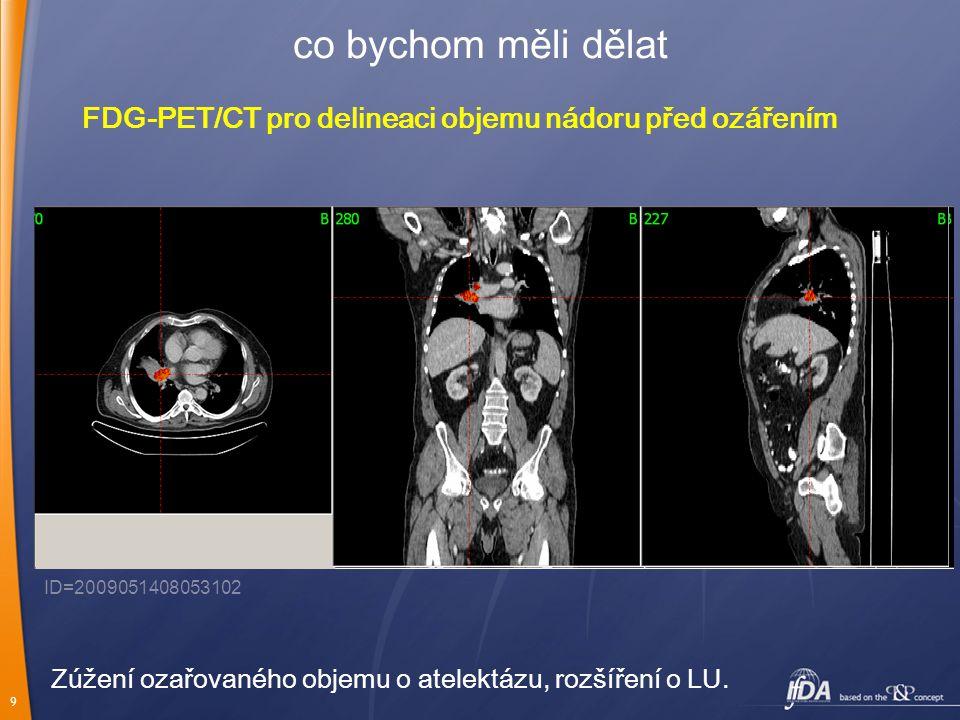 co bychom měli dělat FDG-PET/CT pro delineaci objemu nádoru před ozářením. ID=2009051408053102.