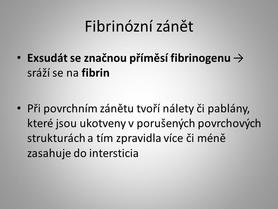 Fibrinózní zánět Exsudát se značnou příměsí fibrinogenu → sráží se na fibrin.
