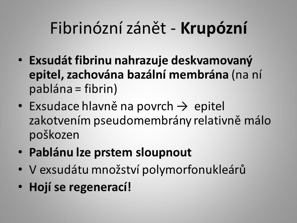 Fibrinózní zánět - Krupózní