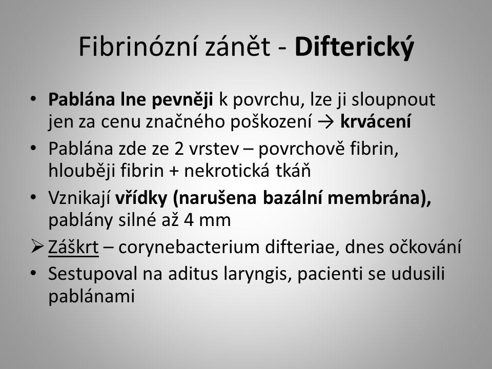 Fibrinózní zánět - Difterický