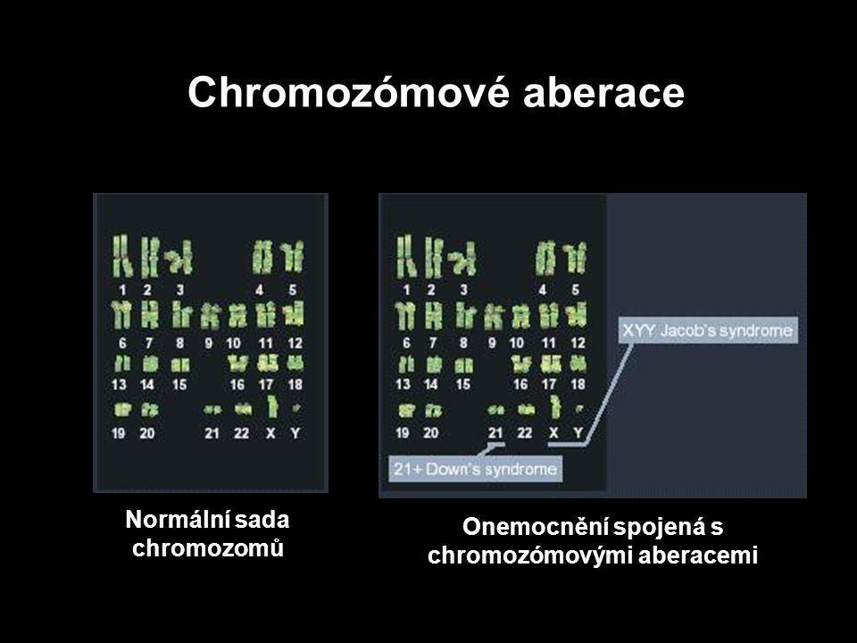 Normální sada chromozomů Onemocnění spojená s chromozómovými aberacemi