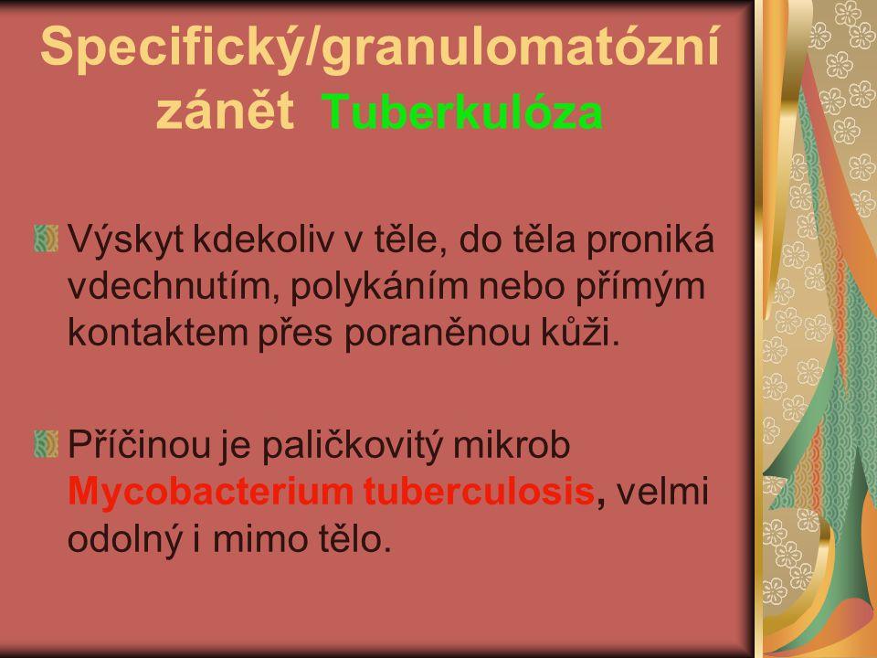 Specifický/granulomatózní zánět Tuberkulóza