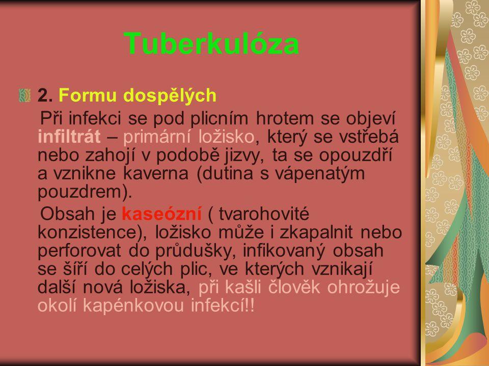 Tuberkulóza 2. Formu dospělých
