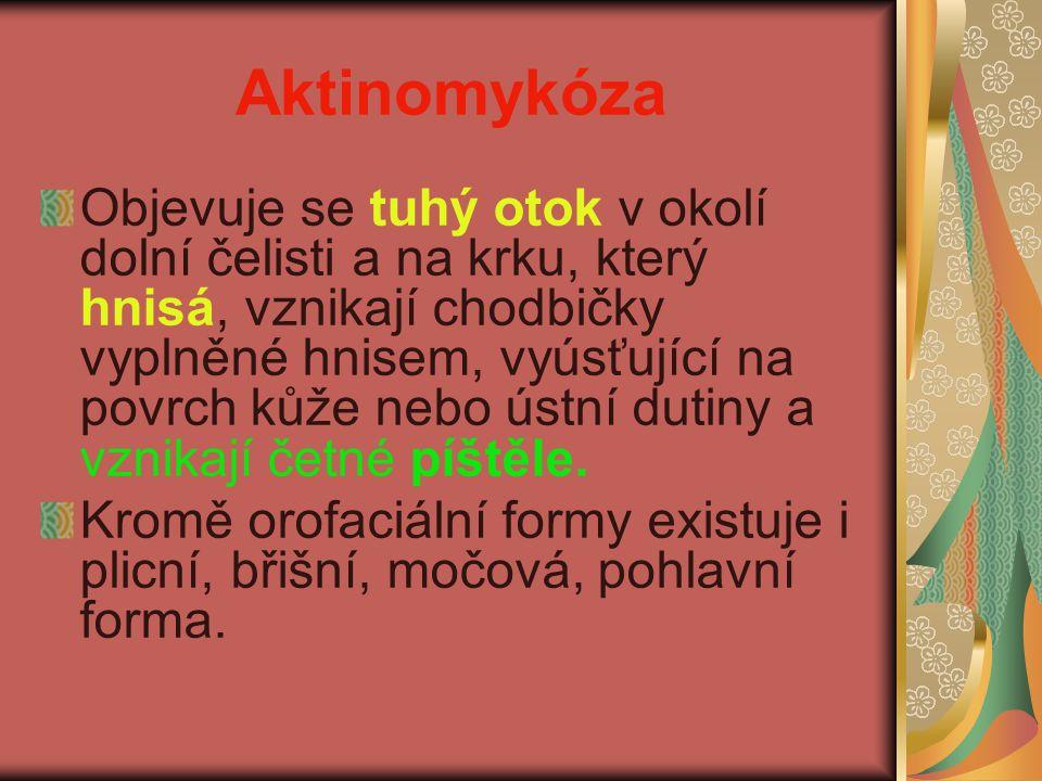 Aktinomykóza