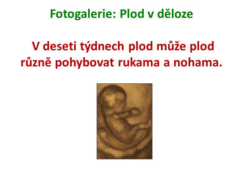 Fotogalerie: Plod v děloze V deseti týdnech plod může plod různě pohybovat rukama a nohama.