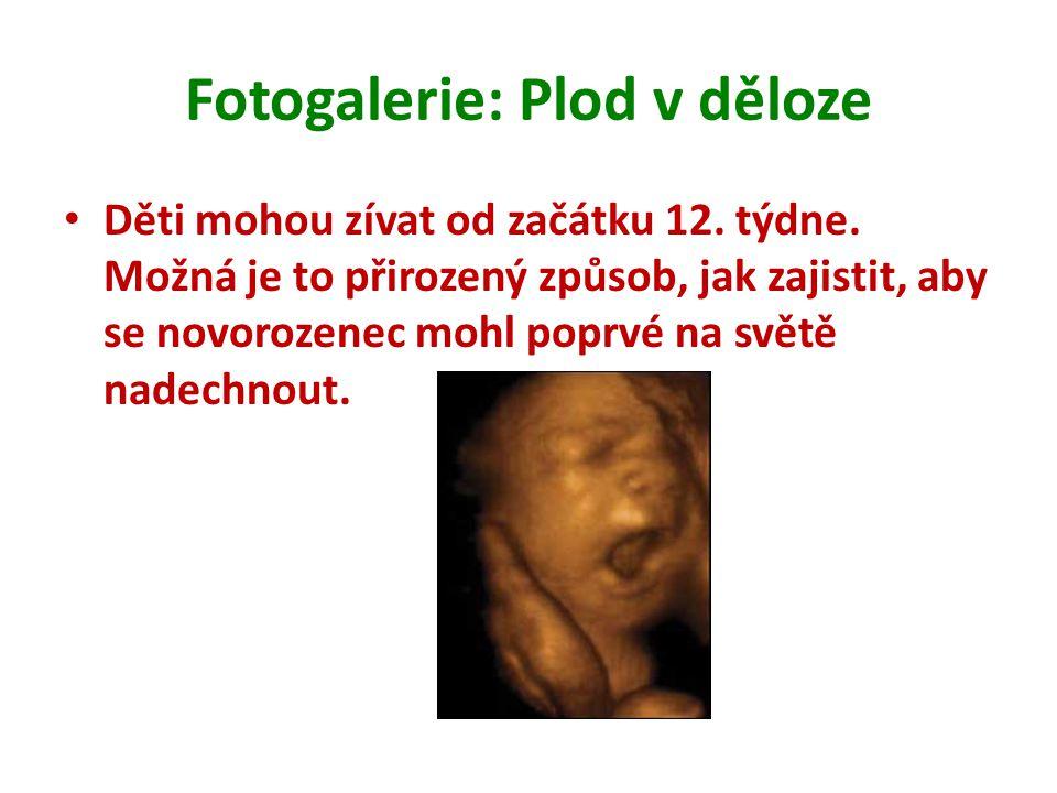 Fotogalerie: Plod v děloze