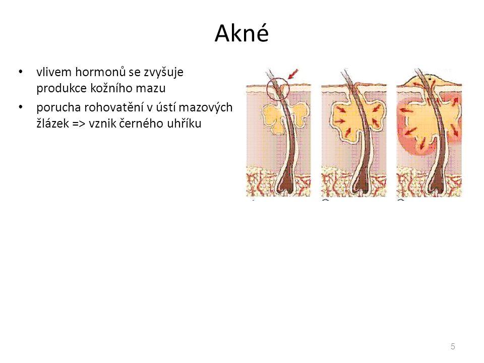 Akné vlivem hormonů se zvyšuje produkce kožního mazu