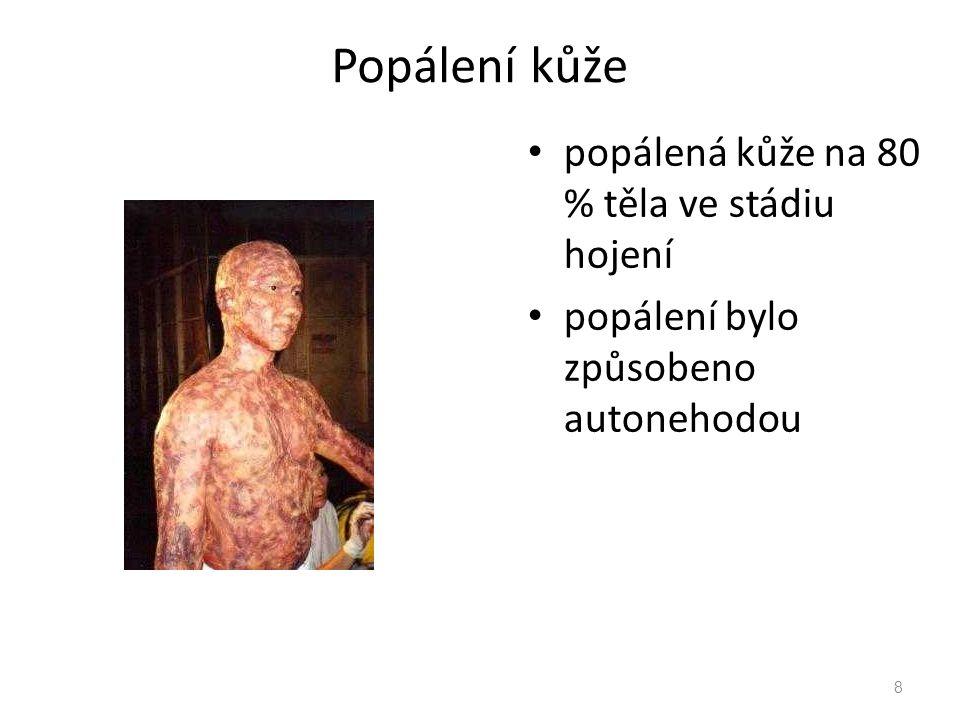 Popálení kůže popálená kůže na 80 % těla ve stádiu hojení