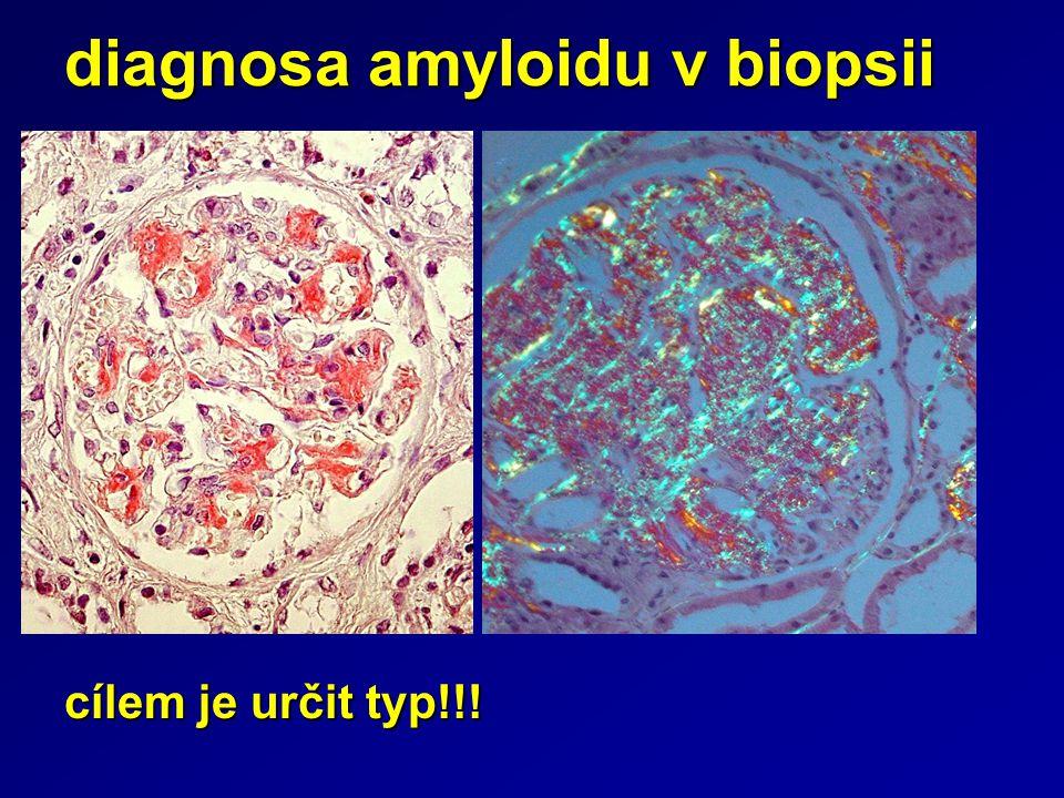 diagnosa amyloidu v biopsii