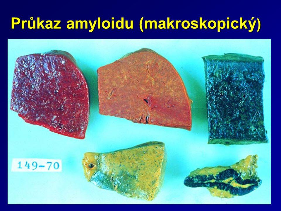 Průkaz amyloidu (makroskopický)