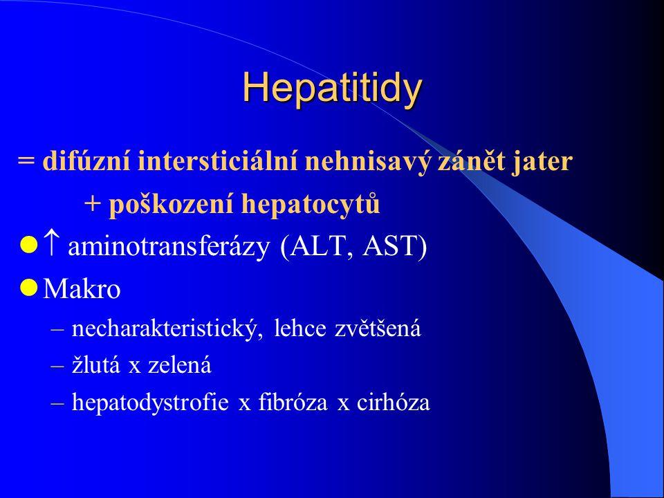 Hepatitidy = difúzní intersticiální nehnisavý zánět jater