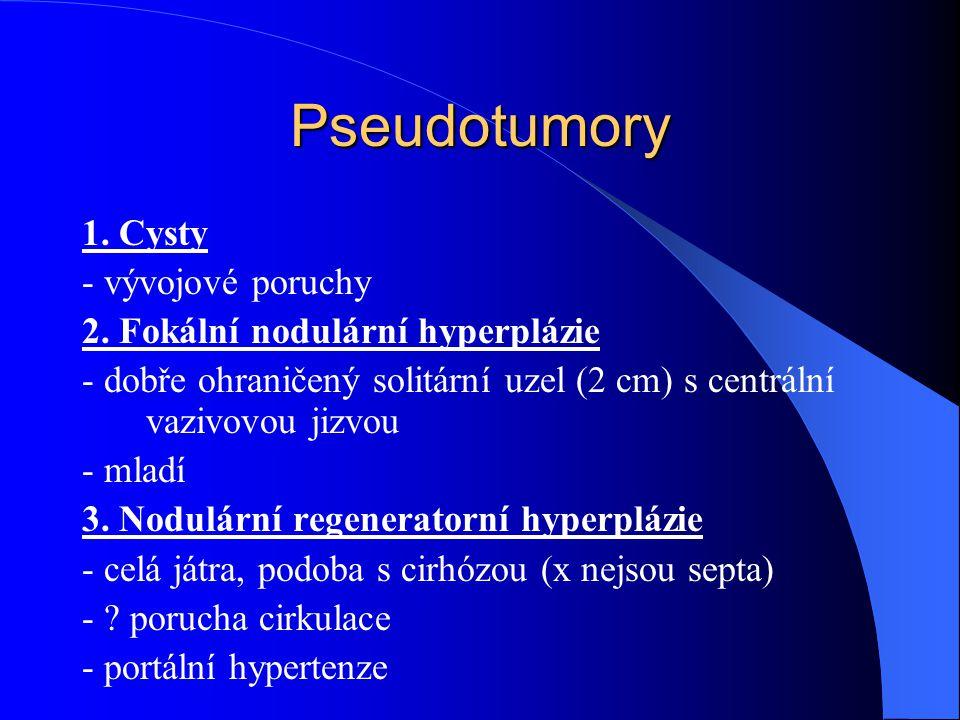 Pseudotumory 1. Cysty - vývojové poruchy