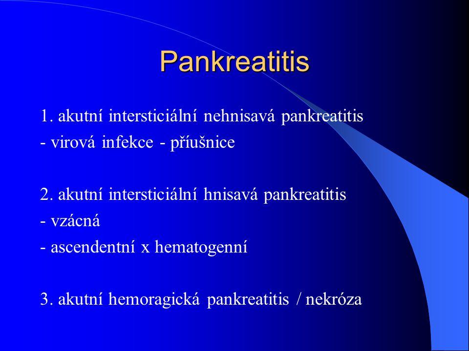 Pankreatitis 1. akutní intersticiální nehnisavá pankreatitis