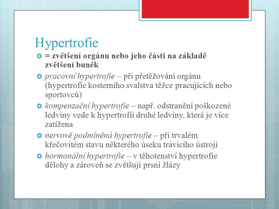 Hypertrofie = zvětšení orgánu nebo jeho části na základě zvětšení buněk.