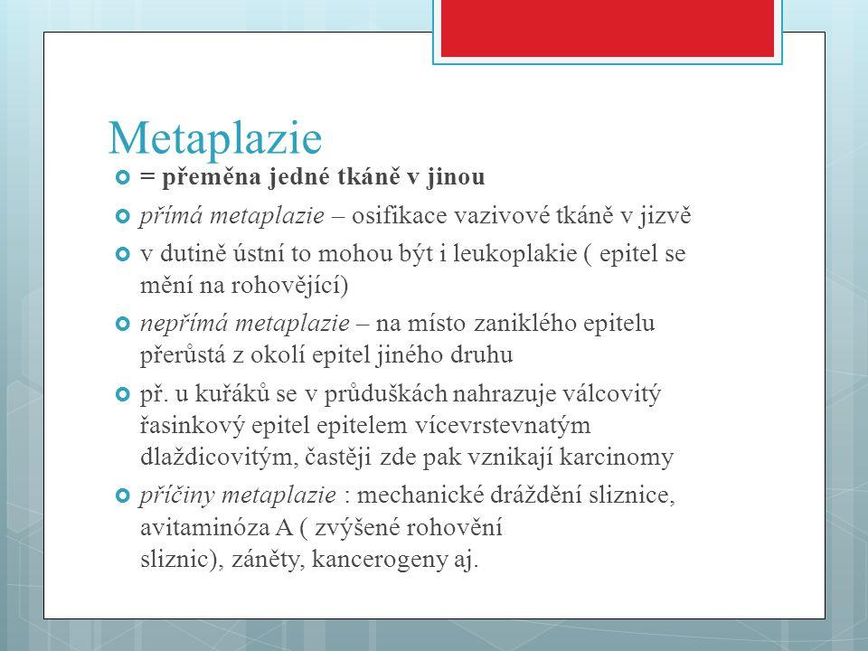 Metaplazie = přeměna jedné tkáně v jinou