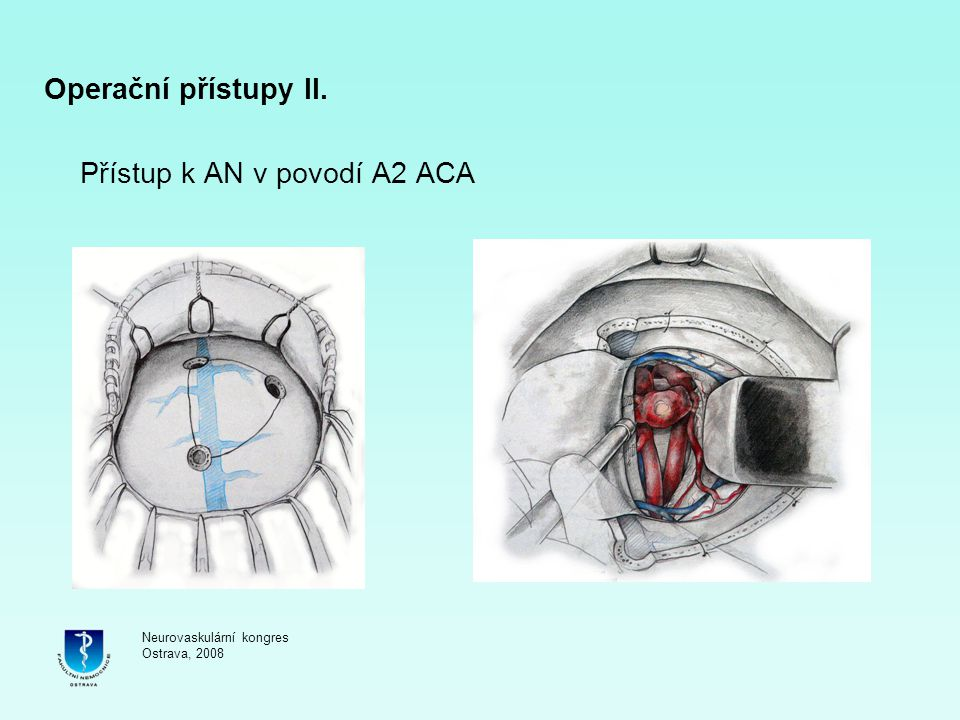Přístup k AN v povodí A2 ACA