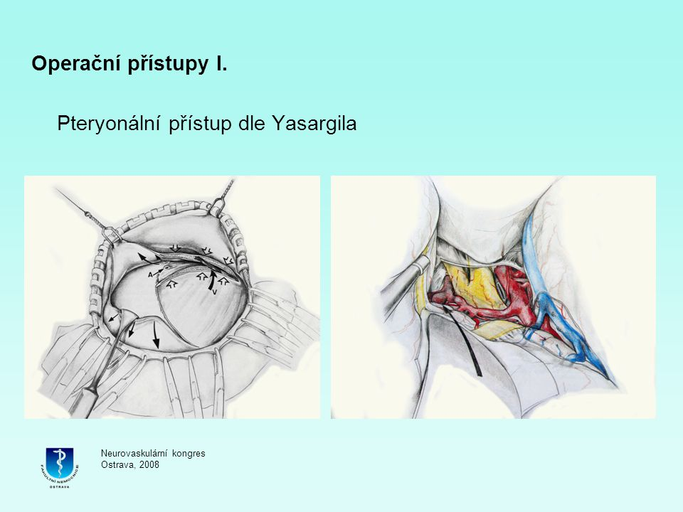 Pteryonální přístup dle Yasargila