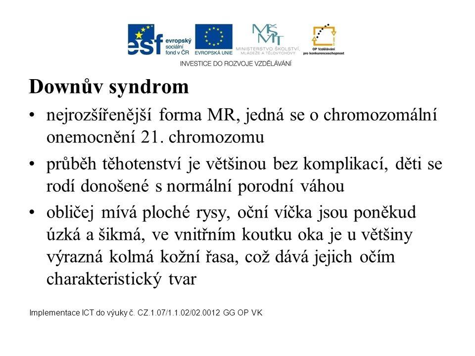 Downův syndrom nejrozšířenější forma MR, jedná se o chromozomální onemocnění 21. chromozomu.
