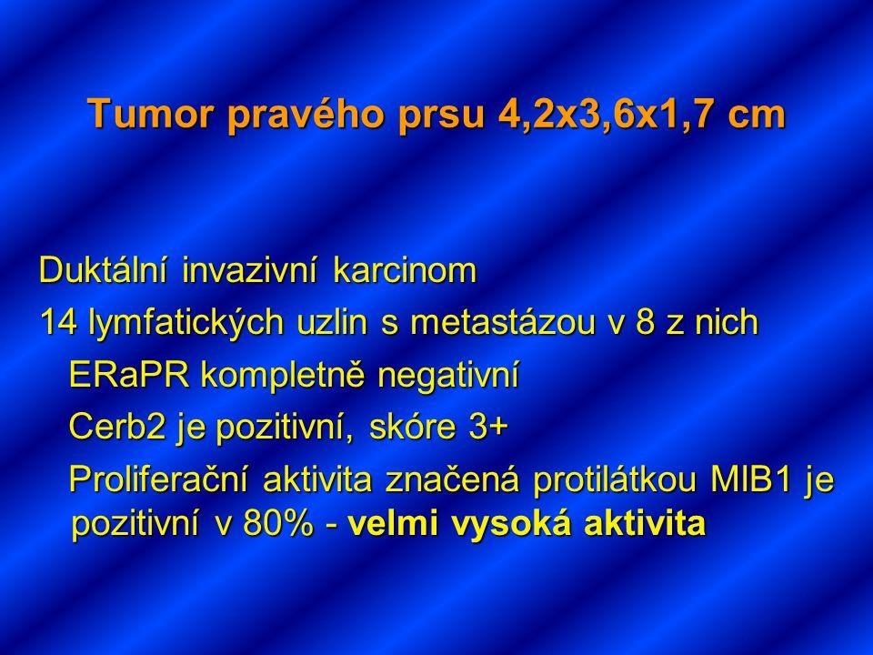 Tumor pravého prsu 4,2x3,6x1,7 cm