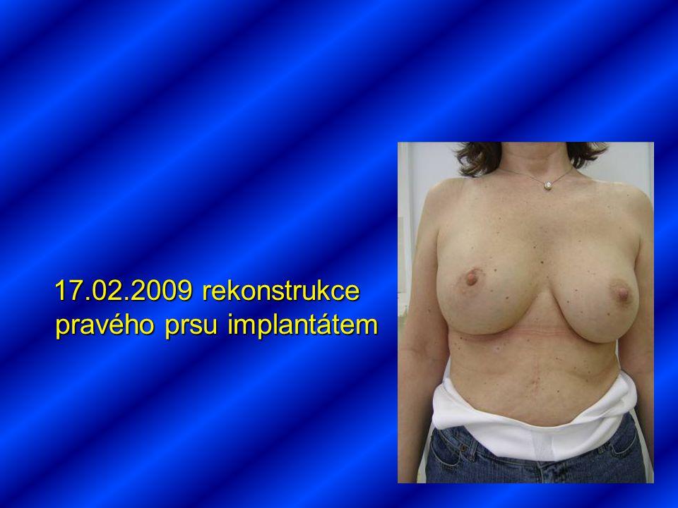 17.02.2009 rekonstrukce pravého prsu implantátem