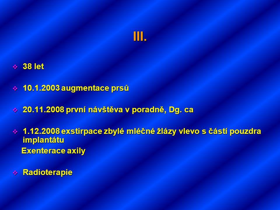 III. 38 let 10.1.2003 augmentace prsů