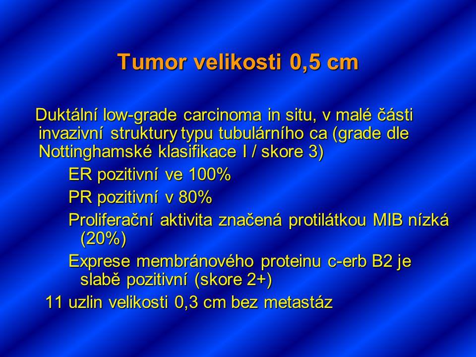 Tumor velikosti 0,5 cm