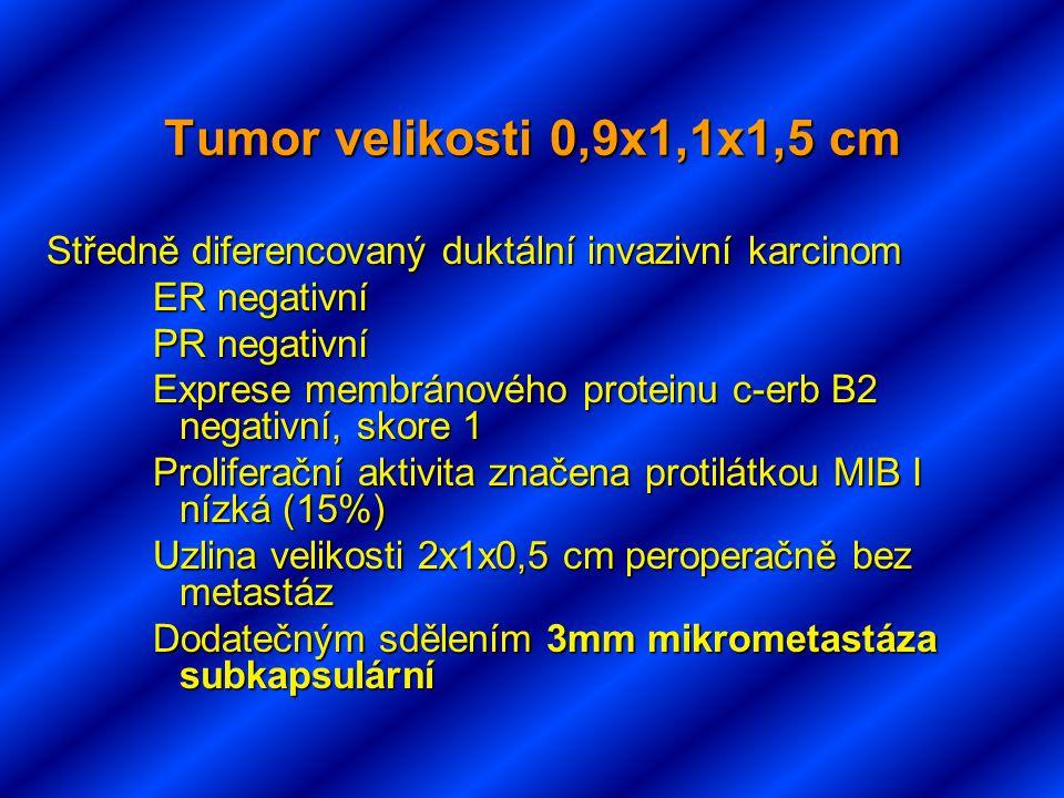 Tumor velikosti 0,9x1,1x1,5 cm Středně diferencovaný duktální invazivní karcinom. ER negativní. PR negativní.