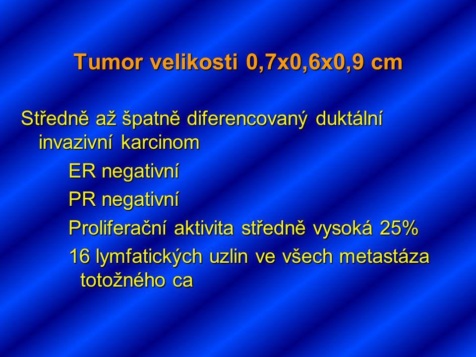 Tumor velikosti 0,7x0,6x0,9 cm Středně až špatně diferencovaný duktální invazivní karcinom. ER negativní.