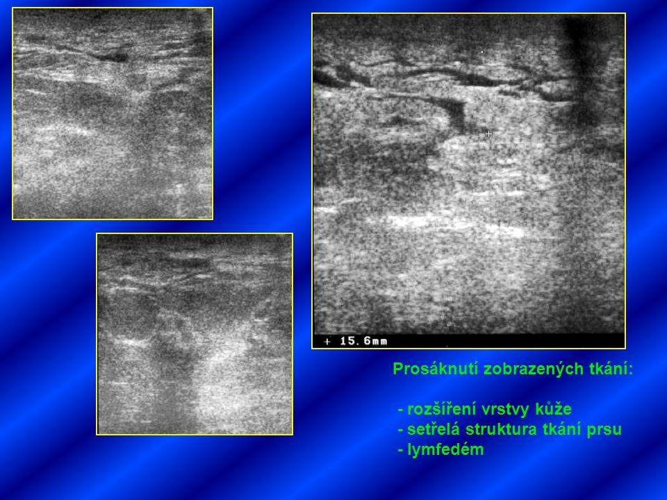 Prosáknutí zobrazených tkání:
