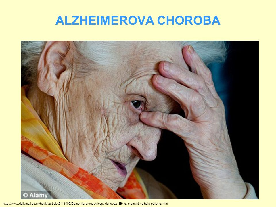 ALZHEIMEROVA CHOROBA http://www.dailymail.co.uk/health/article-2111802/Dementia-drugs-Aricept-donepezil-Ebixa-memantine-help-patients.html.
