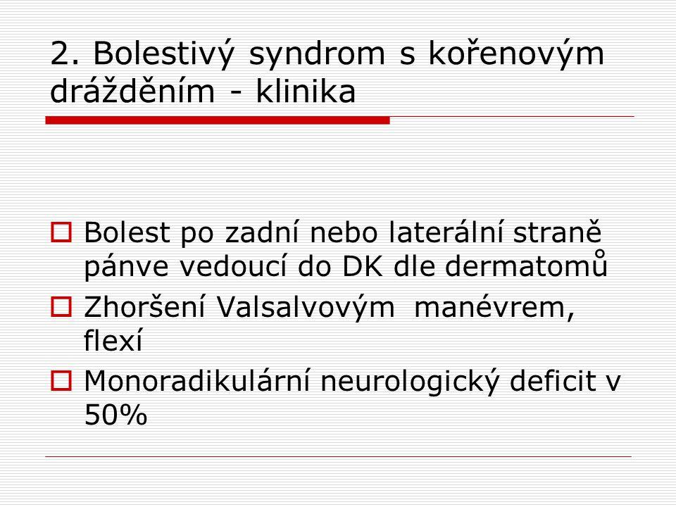 2. Bolestivý syndrom s kořenovým drážděním - klinika