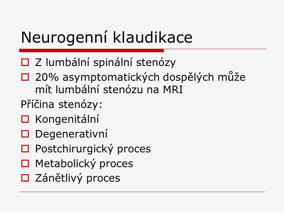 Neurogenní klaudikace