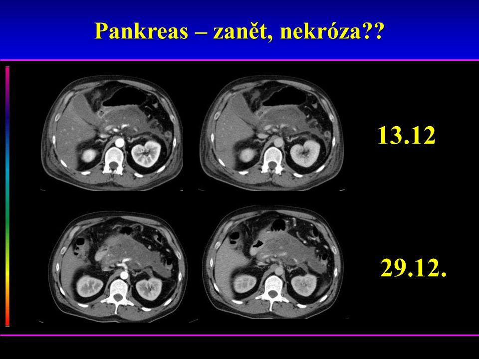 Pankreas – zanět, nekróza