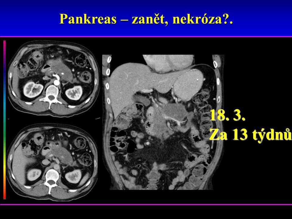 Pankreas – zanět, nekróza .